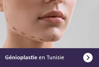 genioplastie tunisie
