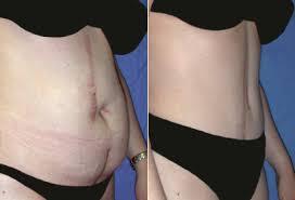 photos avant/apres abdominoplastie tunisie