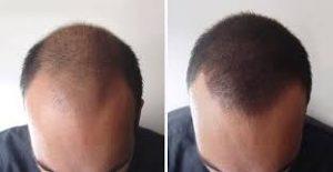 Photo avant aprèsGreffe cheveux en tunisie