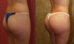 Augmentation fesses par prothèses : photo avant après