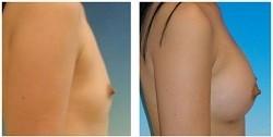 Lipofilling mammaire : photo avant après