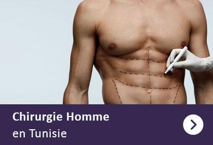 chirurgie esthetique de l'homme tunisie