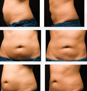 photo abdominoplastie en tunisie avant apres