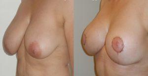 Photos avant/après Réduction mammaire