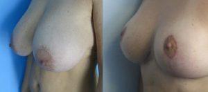 avant apres reduction mammaire