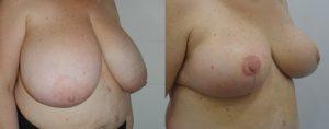 Réduction mammaire Photos avant/après