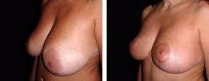 Photos avant/après Lifting seins
