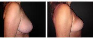 Lifting seins : Photos avant/après