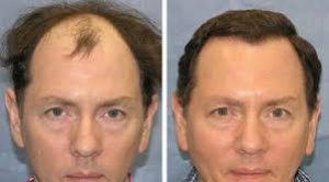 photo avant après greffe cheveux en tunisie
