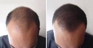 Photo avant aprèsGreffe cheveux pce en tunisie