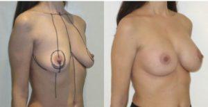 Photo lifting mammaire avec prothèses avant et après