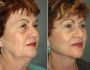 Lifting complet du visage photo avant apres