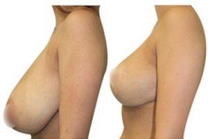 Avant apres réduction mammaire