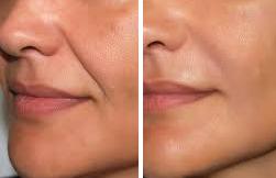 resultat lipofilling visage en tunisie
