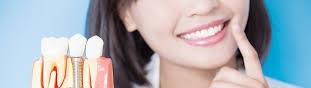 résultat pose implants dentaires tunisie