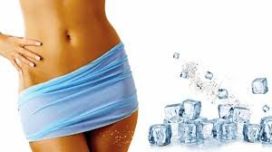 technique de CoolSculpting
