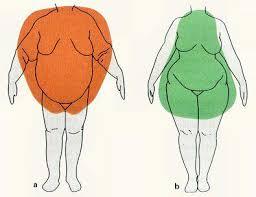 types obésité