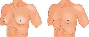 traitement gynecomastie