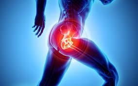 prothèse pour hanche