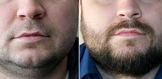 greffe barbe avant après