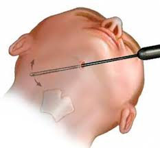 chirurgie liposuccion double menton