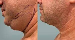 liposuccion double menton