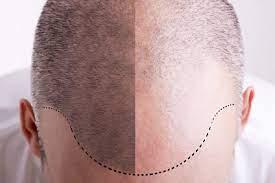 implant cheveux avant apres
