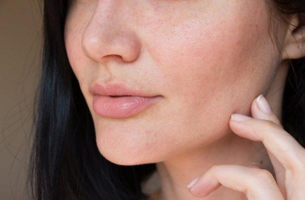 pores dilatées